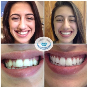 Fox Lane Dental Care Smile Makeover Adult Orthodontics ClearSmile aligner