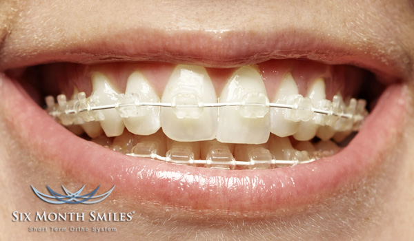 Six Month Smile® (orthodontics)