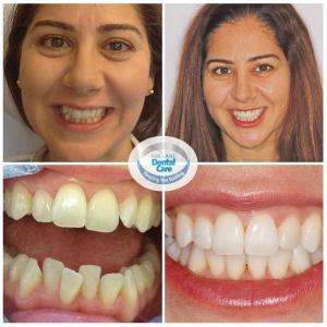 Fox Lane Dental Care Smile Makeover Adult Orthodontics ClearSmile aligner
