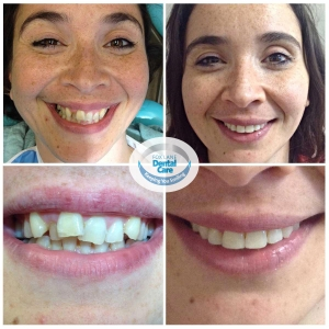 Fox Lane Dental Care orthodontic treatment smile makeovers before and after